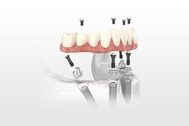 implantologia-all-on-4